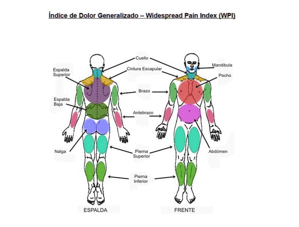dolor generalizado fibromialgia