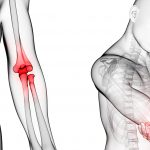 artritis reumatoide fisioterapia málaga