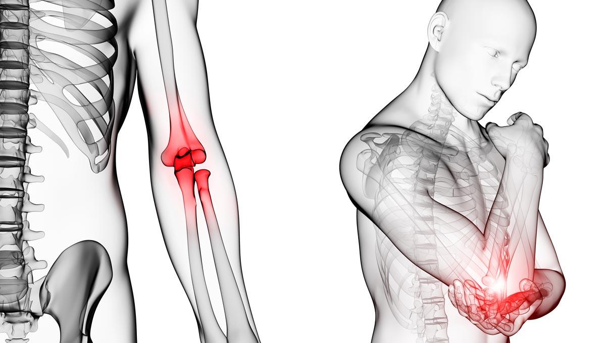 Artritis reumatoide, dolor de articulaciones: síntomas y tratamiento