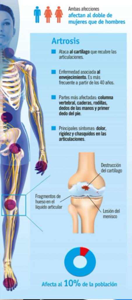 tratamiento para la artrosis