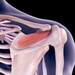 calcificación muscular