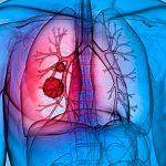 Fibrosis quística y su tratamiento en base a la fisioterapia