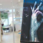 La importancia de una valoración en fisioterapia