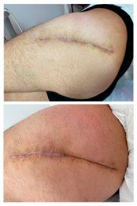 tratamiento cicatrices