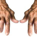 Artrosis, Patología Osteoarticular. Tratamientos y consejos