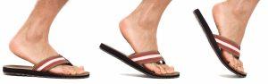 chanclas malo para los pies