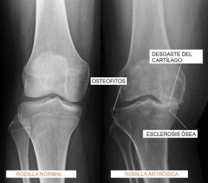 osteofitosartrosis