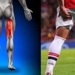 Causas y prevención de lesiones Isquiotibiales en futbolistas