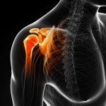 Lesiones de hombro