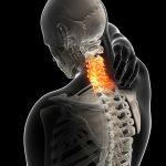 Cervicobraquialgia Las lesiones más frecuentes tras sufrir un accidente automovilístico son las lesiones en el torso y en el cuello, o en extremidades en caso de motocicletas, según la DGT.